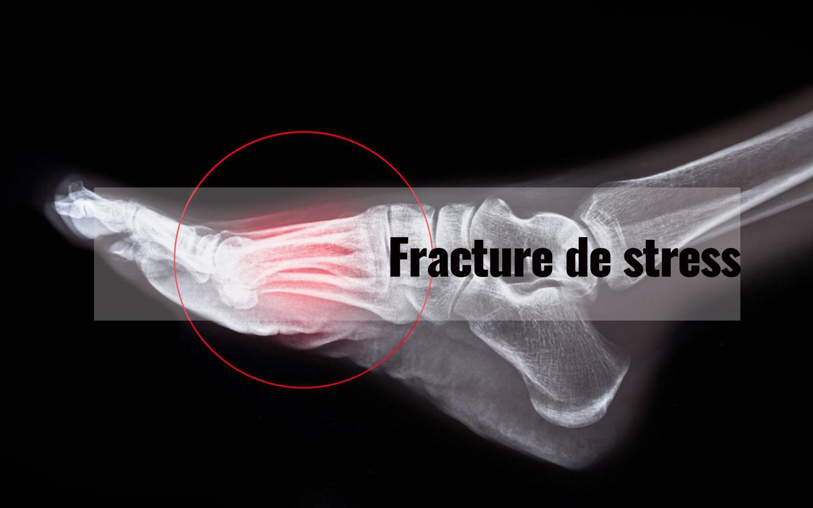 Fracture de stress